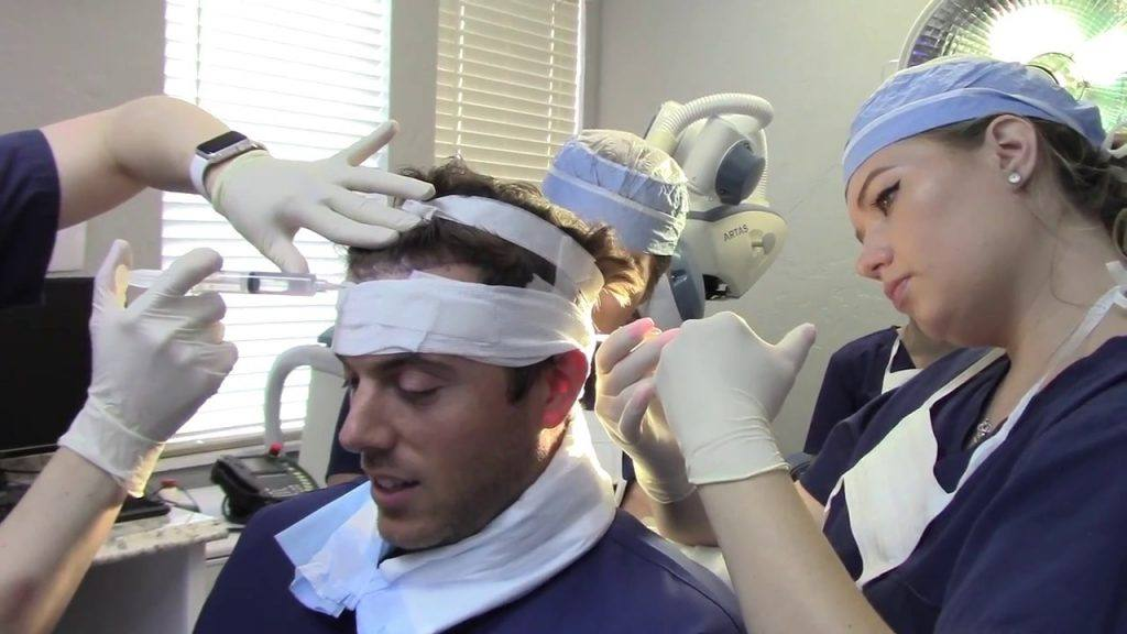 Neograft Hair Transplant Technique